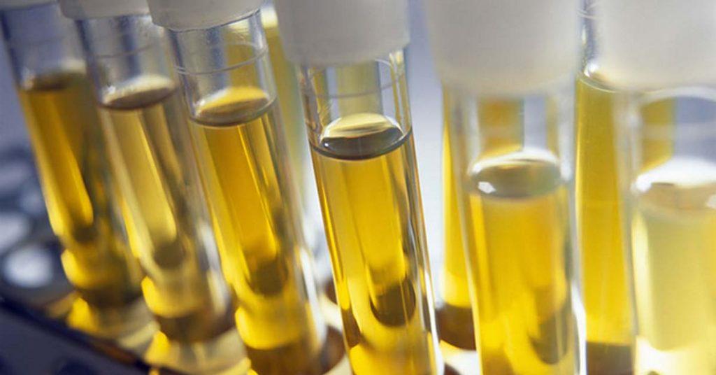 types of urine tests