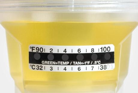 urine specimen temperature