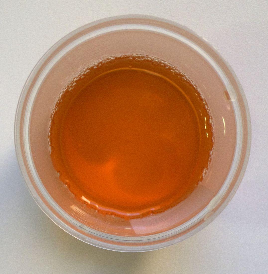 dark urine